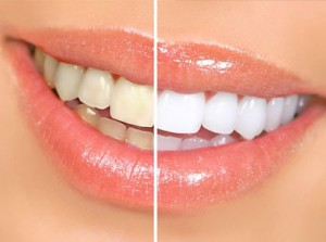 Cosmetic-Dentistry3